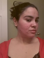 This was a morning snapshot to see how my skin looked after exfoliating the night before.