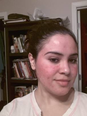 You can see how red your skin will look immediately after removing the mask. This is normal. The redness goes away, and hyperpigmentation is dulled as well.