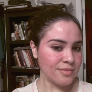 Redness After Removing Skin Tags Natural Remedies